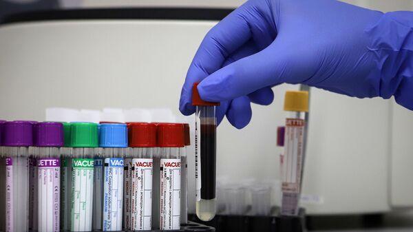 Тестирование на антитела к коронавирусу - Sputnik Абхазия