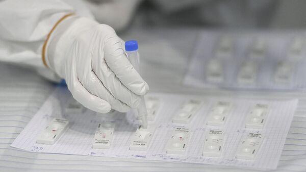 Фельдшер готовит экспресс-тест на корону для журналистов в центре вакцинации от COVID-19 в Кельне, западная Германия - Sputnik Абхазия
