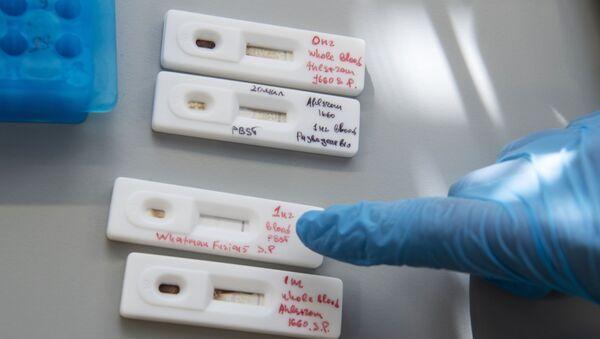 Разработка экспресс-тестов на коронавирус учеными из центра Сколково - Sputnik Аҧсны