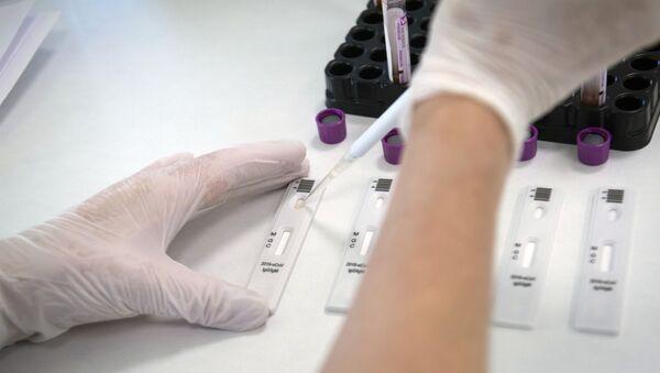 Экспресс-диагностика на антитела к коронавирусу в клинике Hadassah Medical Moscow в Сколково - Sputnik Аҧсны